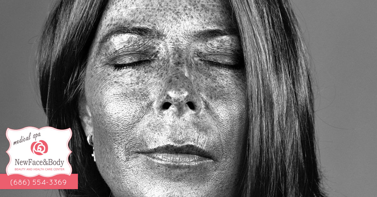 New Face And Body Tratamientos Faciales En Mexicali